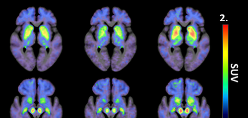 The tracer 18F-AV-1451 may help diagnose progressive supranuclear palsy